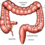 Colorectal Cancer Diagnosis