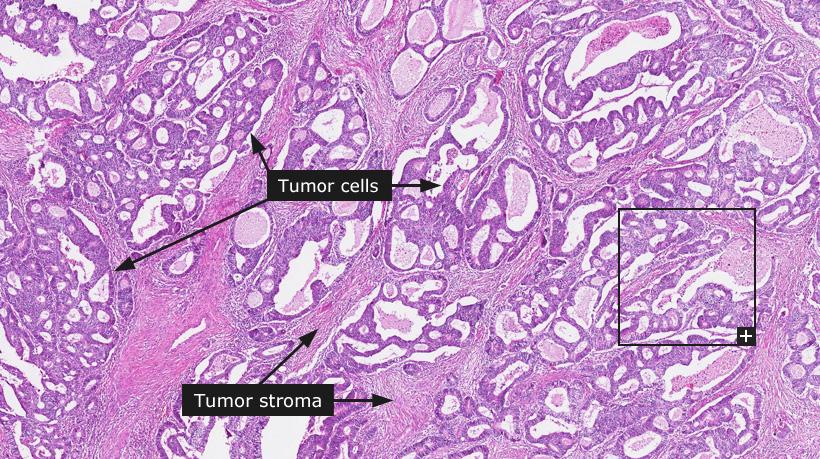 Colorectal cancer medical definition
