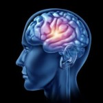 Study warns of increasing incidence of brain bleeds in US population over next 15 years 1